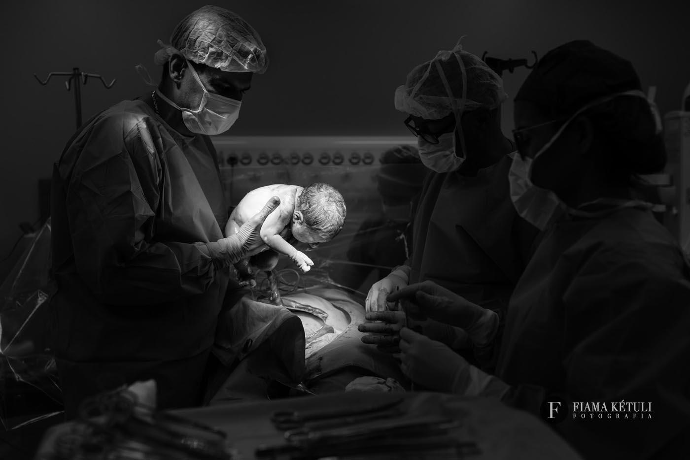 fotografia-de-parto-brasilia-cesarea